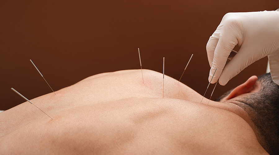 Close-up needles at the back of a man during an acupuncture procedure